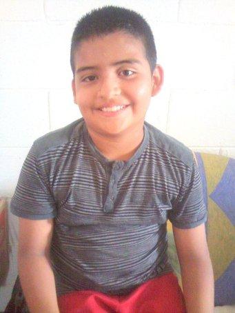 Ramón después de recibir su trasplante intraocular