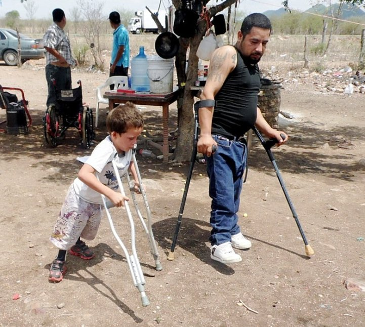 Teaching Míguel Ángel to walk with crutches, Tómas could demonstrate from his own experience.