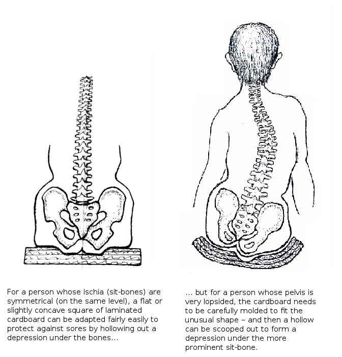 LEFT IMAGE – For a person whose ischia (sit-bones) are symmetrical (on the same level), a flat or slightly concave square of laminated cardboard can be adapted fairly easily to protect against sores by hollowing out a depression under the bones. RIGHT IMAGE – But for a person whose pelvis is very lopsided, the cardboard needs to be carefully molded to fit the unusual shape – and then a hollow can be scooped out to form a depression under the more prominent sit-bone.