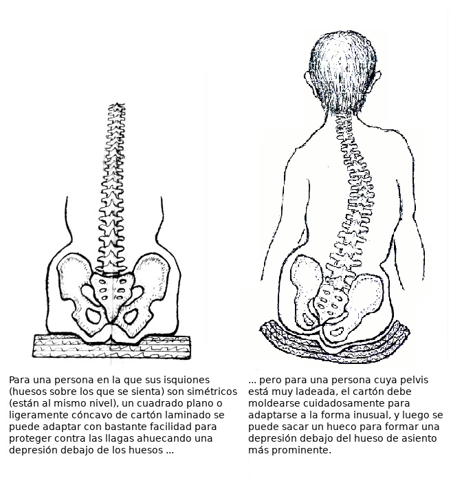 nl83_06_spine_placement_on_cushion_rev0322618_spanish
